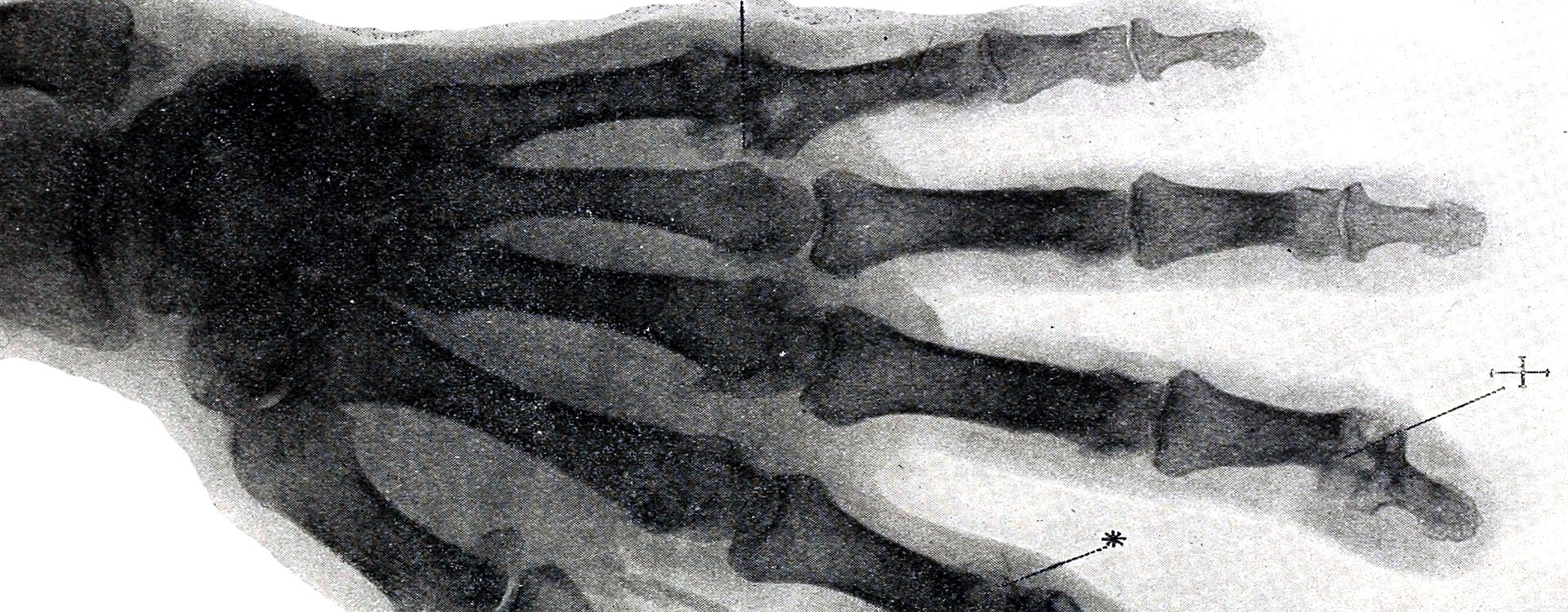 Tophi X-ray Banner Picture