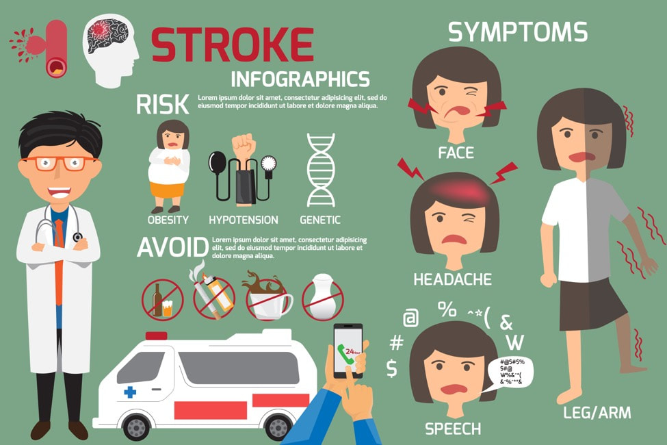 Stroke Infographic Picture